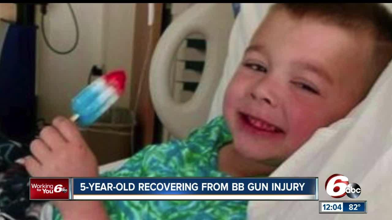 5-year-old Anderson boy shot in the head with BB gun