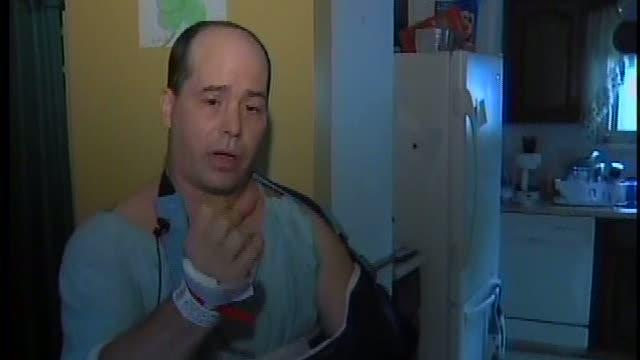 Man talks about fireworks accident that cost him his fingers