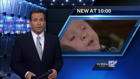 Oconomowoc boy born without eyes, ability to hear