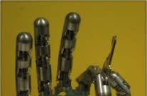 Prosthetic, robotic 'Smart Hand' has feelings, too