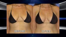 Woman's Weight Loss Makeover Is Completed with Breast Lift