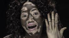 Superó el 'bullying' por vitiligo y ahora es modelo