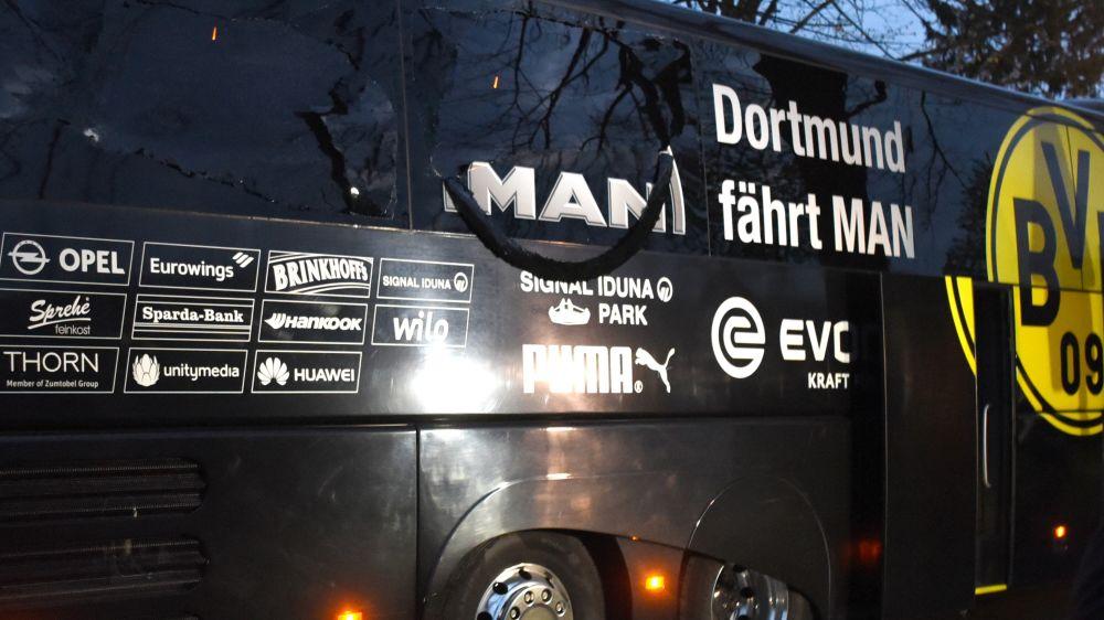 """Choc a Dortmund: bombe al bus, Bartra ferito ed operato. """"Attacco pianificato"""""""