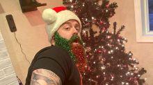 Weihnachtsbart: Diese Glitzer-Deko war erst der Anfang