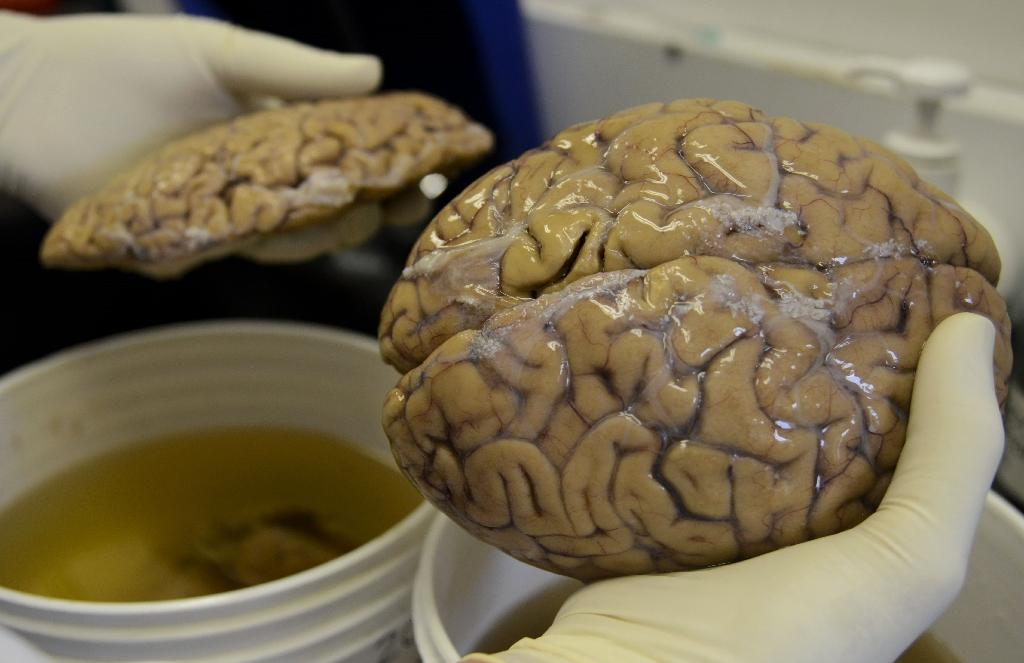 Around the age of 13, the human brain region that hosts memory and learning appears to stop producing nerve cells, according to a new study