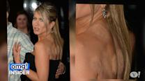Jennifer Aniston's Backless Ensemble Shows She's Into 'Cupping'
