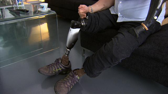 Life after limb loss: Words for Boston bomb victims