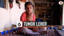 VIDEO: Gadis 12 Tahun Menderita Tumor Sebesar Bola Sepak di Leher