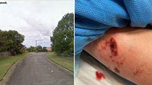 Cop mauled after woman 'sets dog on officer during arrest'