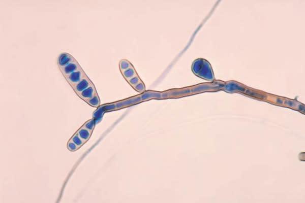 Some Fungal Meningitis Patients Slowly Recovering
