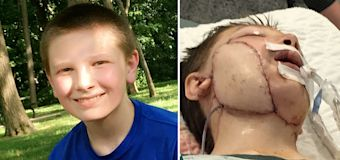 Boy mauled by dog during gender reveal party