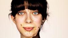 Il a photographié des personnes atteintes d'une maladie rare de la peau pour illustrer la beauté de la diversité