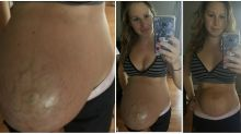 Mum's shocking postpartum photo shows your body might not bounce back as fast as you'd think