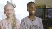My twin sister has albinism - The nine-year-old twins born different