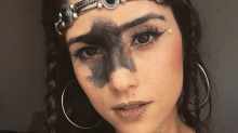 Modelkarriere trotz großem Muttermal: Diese Brasilianerin macht anderen Mut