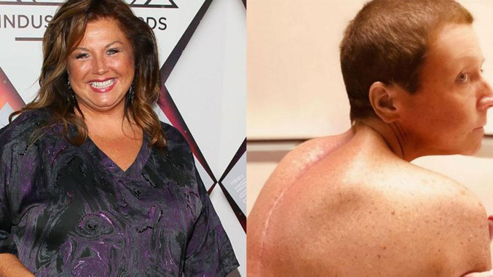 Realty TV star is unrecognisable after spinal surgery