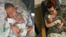 A premature baby has beaten the odds to survive after her lungs collapsed from crying too hard