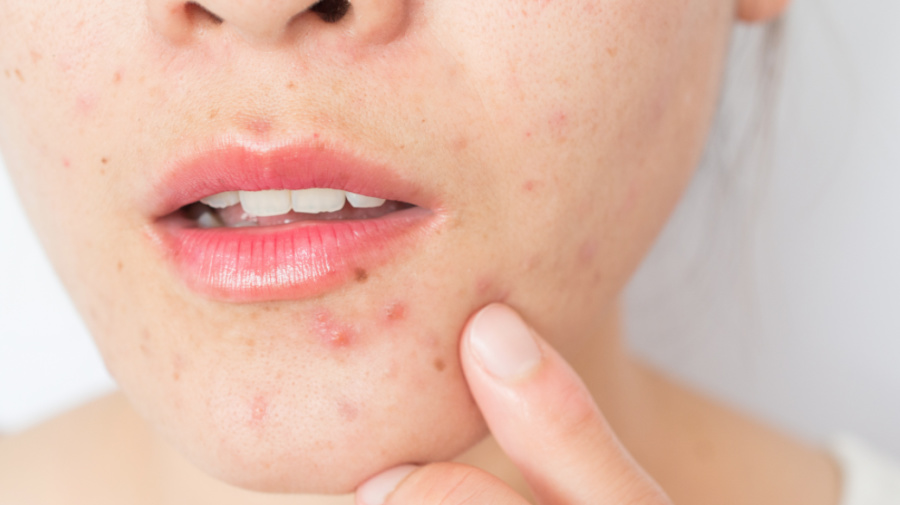 Why people are turning to therapy to treat acne