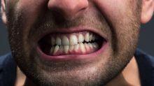 Estos signos podrían indicar que tus dientes están envejeciendo