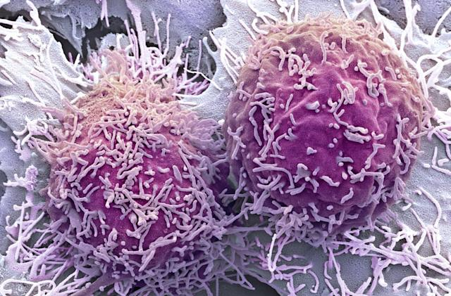 Researchers use ultrasound to activate cancer-killing drugs