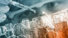 Is Sinovac Biotech Ltd. (SVA) A Good Stock to Buy?