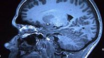Alzheimer's on the rise in the U.S.?