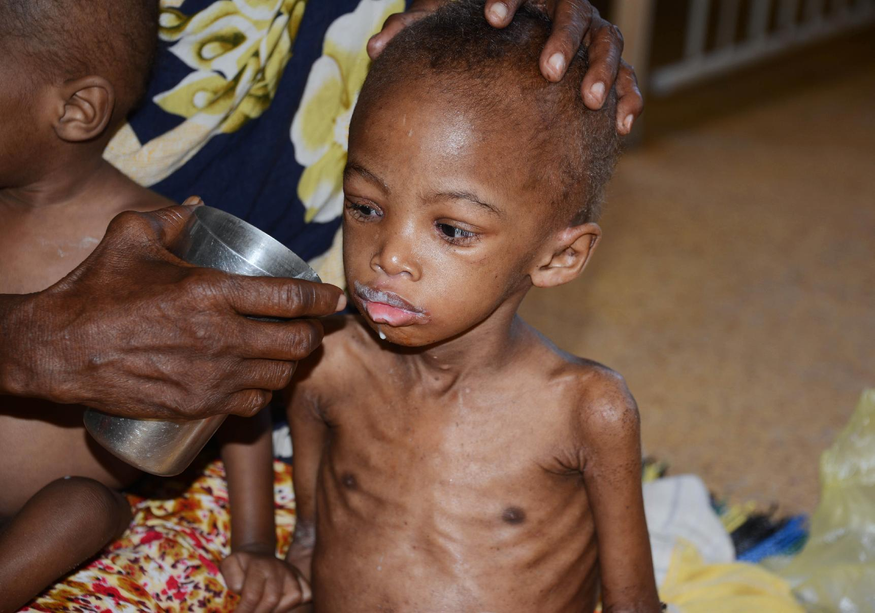 A malnourished child receives a drink in Banadir Hospital in Mogadishu on May 20, 2014