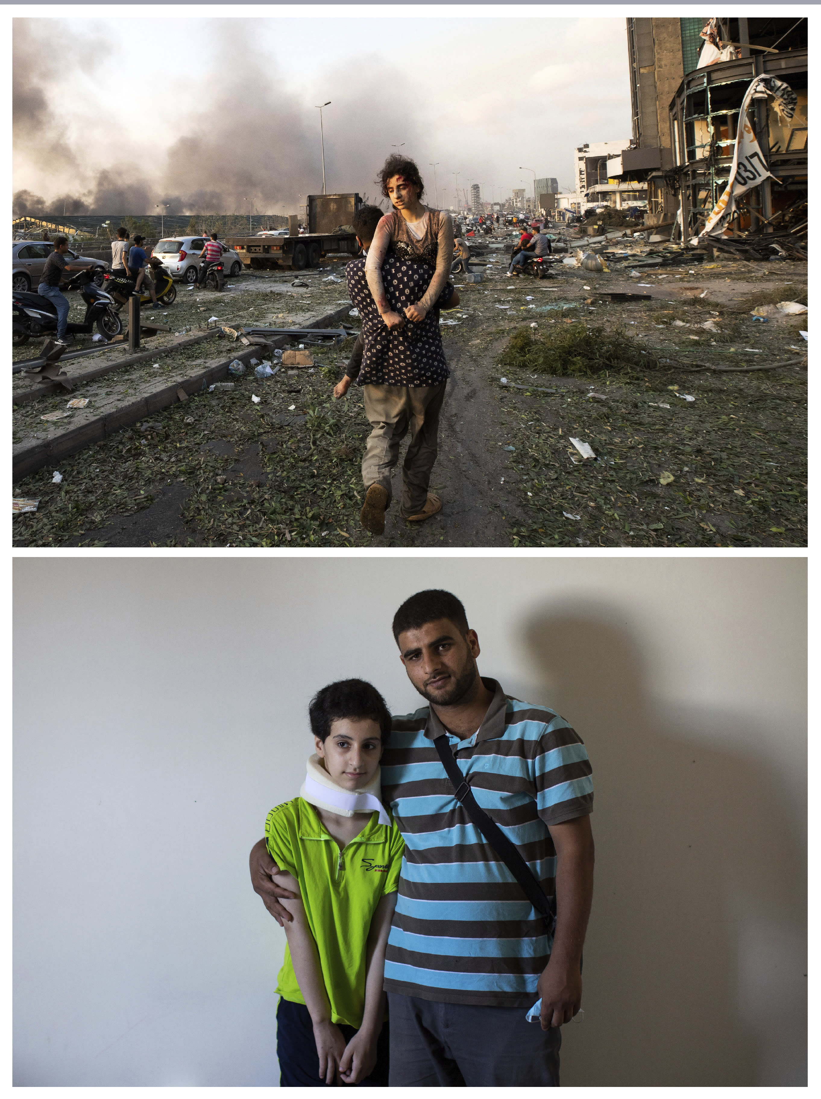 This combo of two photographs shows, top, Hoda Kinno, 11, on Aug. 4, 2020 being carried by her uncle Mustafa Kinno, in the aftermath of the massive explosion at Beirut port on Aug. 4, and bottom, Hoda and Mustafa posing for a photograph at a temporary apartment in the coastal town of Jiyeh, south of Beirut, Lebanon, Tuesday, Sept. 15, 2020. (AP Photo/Hassan Ammar)
