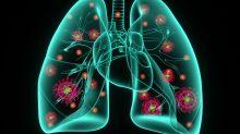 Polmonite bilaterale: che cosa vuol dire esattamente?
