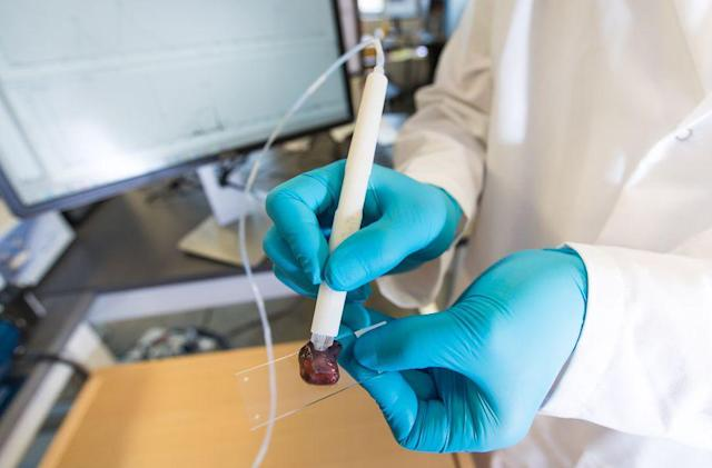 This pen can determine whether tissue is cancerous in ten seconds