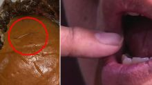 Man's tongue 'pierced by needle' when he bit into McDonald's burger
