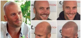 MAFS star Mike's dramatic hair transformation
