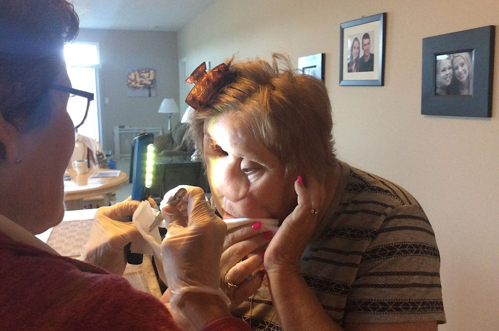 Deslandes has a home care nurse visit to help clean the hole in her face left by the removal of her eye. (Kelly Putter/Yahoo Finance Canada)