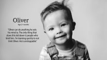 Powerful photo series crushes Down syndrome misconceptions