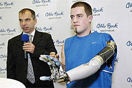 Mind-controlled prosthetic arm moving to market in Europe