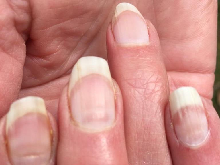 People are getting 'COVID nails,' and one expert says the unusual lines could be as useful as an antibody test to prove previous infection - Yahoo News