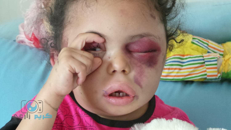 what happened to injured yemeni child. Black Bedroom Furniture Sets. Home Design Ideas