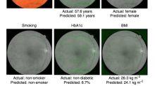 Google a développé une IA qui détecte les risques de maladies cardiaques en scannant les yeux
