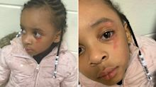 Mum claims teacher hit five-year-old daughter with ruler