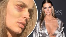 Aussie model Robyn Lawley's shocking 'post-seizure' photo