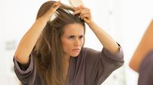 How to ward off dandruff as winter takes its toll on your scalp