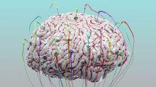 World Brain Day 2020: 8 Tips to Maintain Good Brain Health