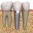 Dr. Otávio Implante dentário Araruama Dentista  RJ