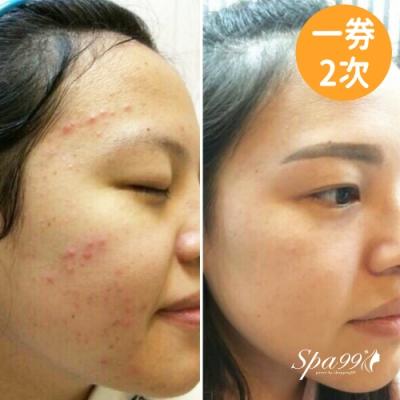 (台北)男女適用 極潤嫩白透亮奇肌+超聲波緊緻提拉,共2次 (Young美學)