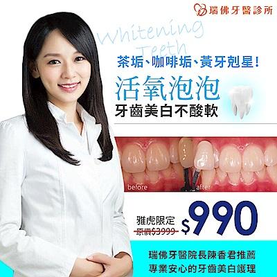 (愛爾麗)快速揮別黃牙 牙齒美白不酸軟 活氧泡泡牙齒美白