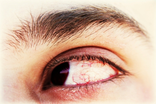 eye JPG 095627